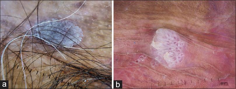 vestibular papillomatosis common