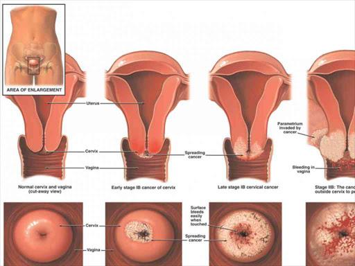 cervical cancer yeast infection pediatrics journal human papillomavirus vaccine