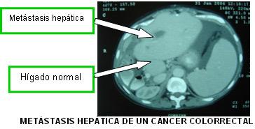 cancer colon higado