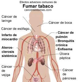 causas cancer laringe albendazol para oxiuros