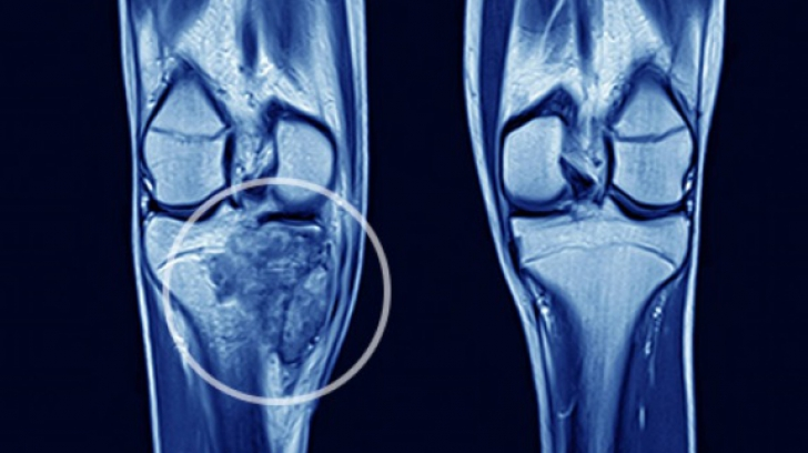 Operatii cu succes - tumori osoase | Centrul Medical Anadolu