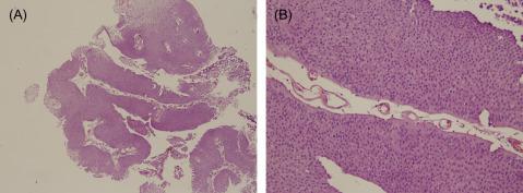 intraductal papilloma hyperplasia cancerul este transmis clonal