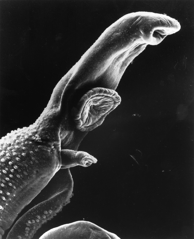 Fișier:Schistosomiasis itch.jpeg