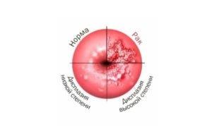 virusul papiloma uman la copii cancer pulmonar cu celule mici speranta de viata