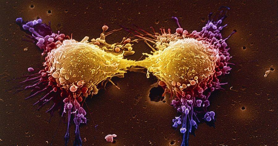 cancer de prostata hormonorezistent