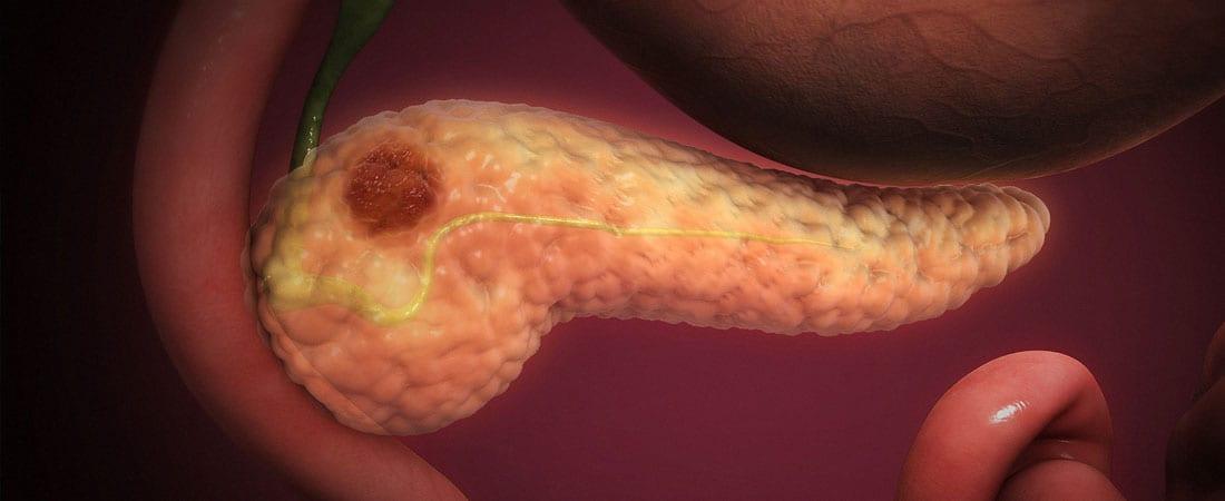 papilloma intraductal imagenes papillomavirus test after hysterectomy
