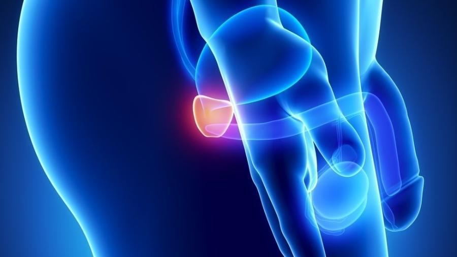 Cancer de prostată