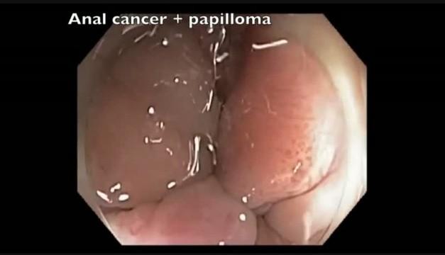 Tot ce trebuie sa stii despre HPV: Simptome & Tratament