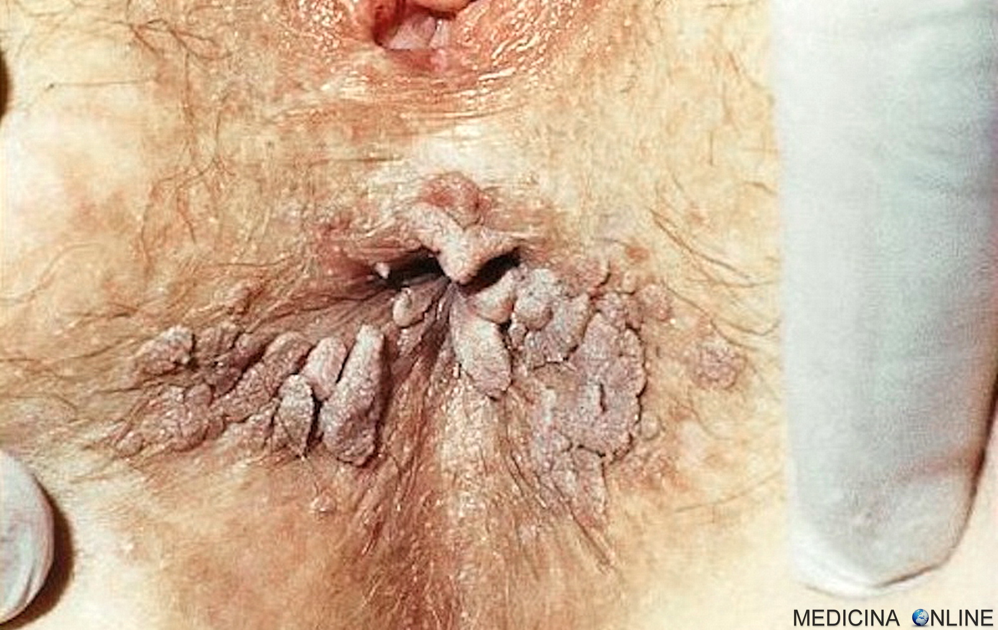Antivirale a prostata