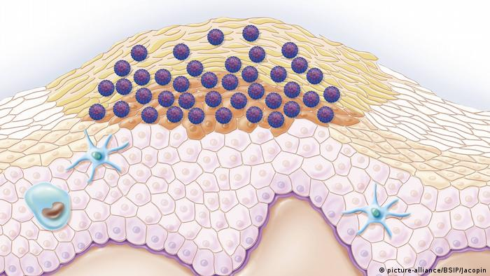 tratament pt viermisori cancerul pulmonar varsta
