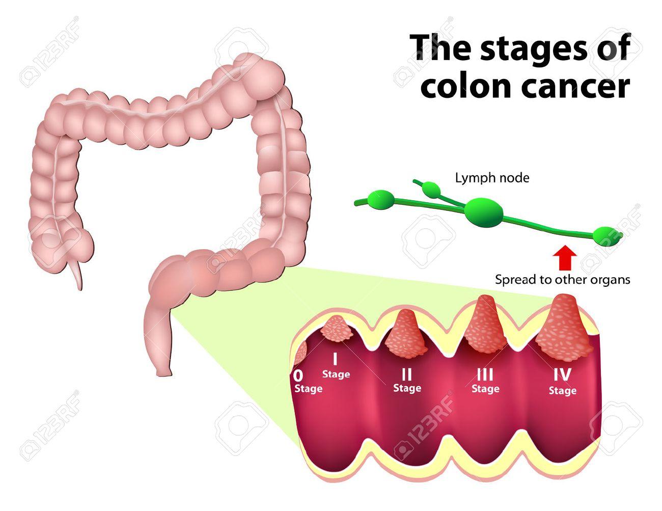 cancer du gros intestin stade 3