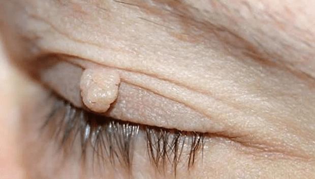 Negi vezici: cauze, eliminare, și remedii de origine 💊 Zi Medicament