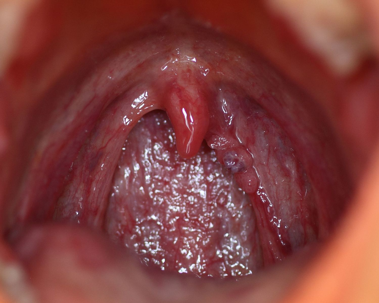 hpv virus symptoms mouth