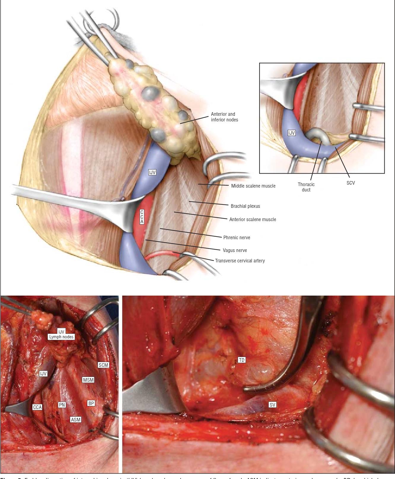 papillary thyroid carcinoma jugular virus del papiloma humano biomagnetismo