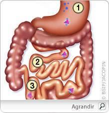 cancer de pancreas ultimos sintomas schistosomiasis jamaica