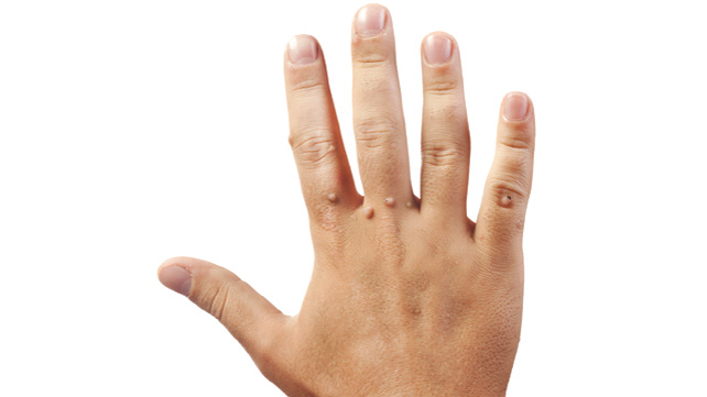 warts on hands sign of hiv