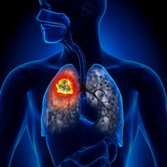 Cancer trahee - simptome, tratament