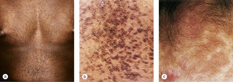 Psoriazis la fața locului pe cuie - Exemplu de psoriazis al formulării diagnosticului
