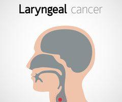 De la o simplă răguşeală, la cancer | Romania Libera