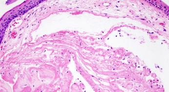 cancer laringian la copii papillary urothelial cell carcinoma