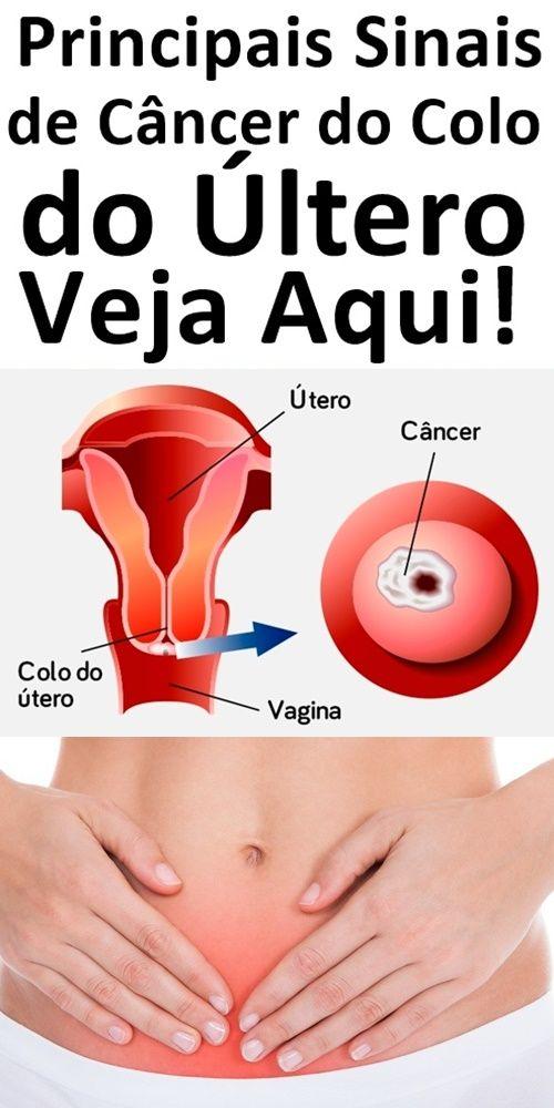 #CancerCervical Instagram posts - primariabeuca.ro