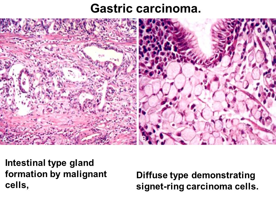 gastric cancer diffuse type
