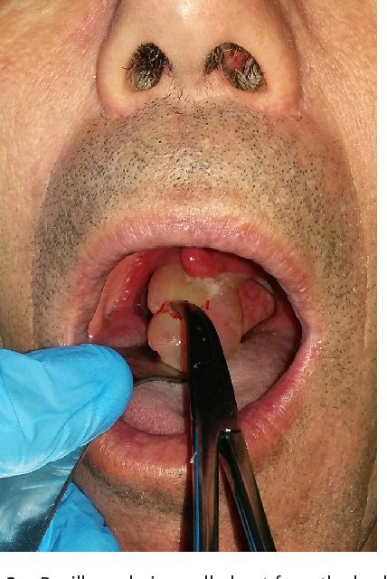 papilloma nose