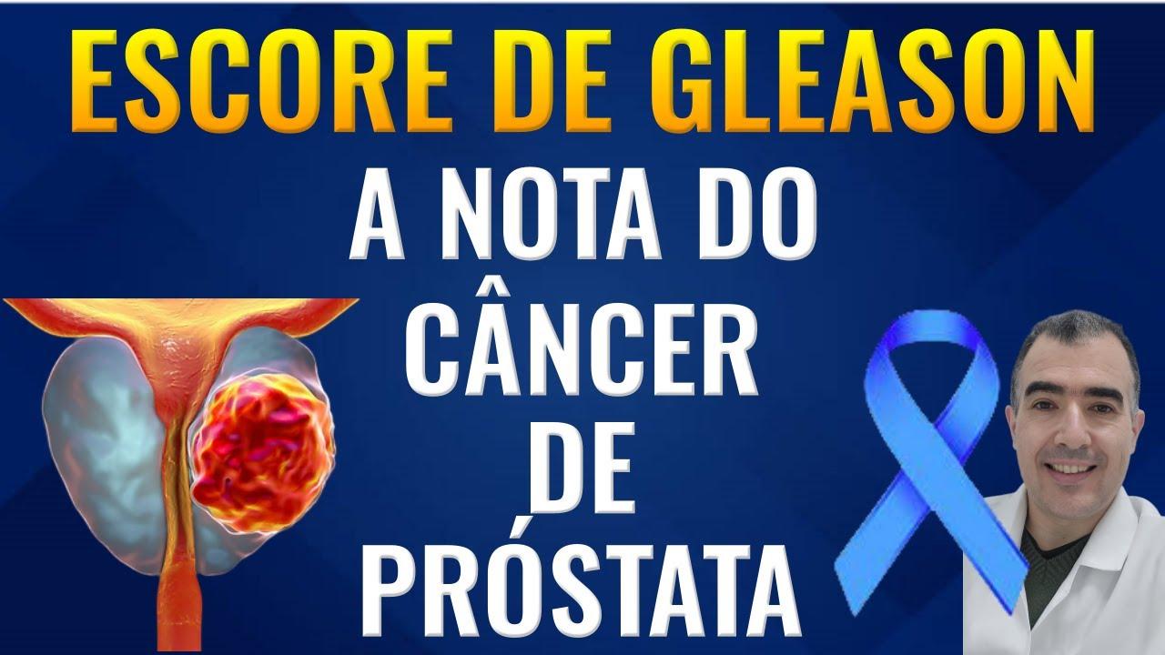 cancer de prostata grau 9 tem cura