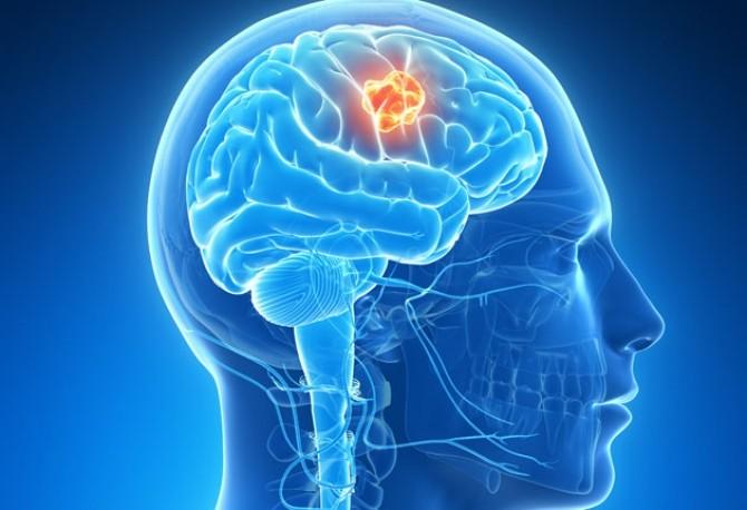 Tumorile cerebrale: simptome, factori de risc, diagnostic și tratament - medpark