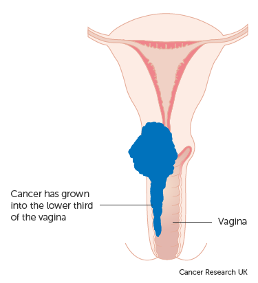 cancer pancreas evolution human papillomavirus on knee