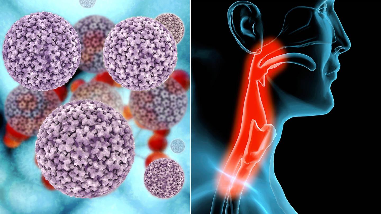 human papillomavirus-related oropharyngeal cancer papillomavirus giraffe
