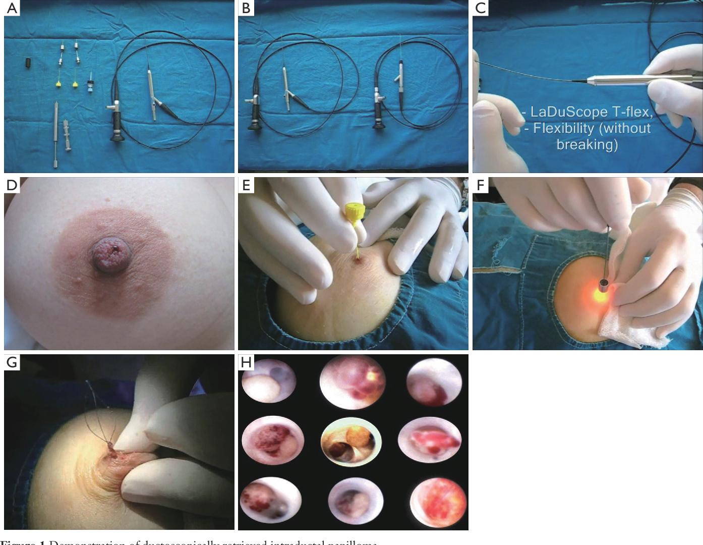 cancer de esofag vindecat