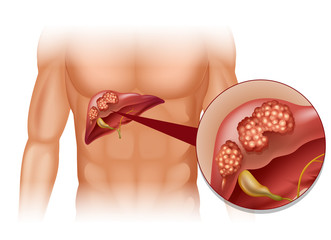 dysbiosis treat pancreatic cancer targeted therapy