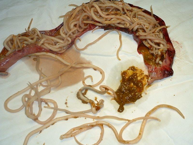 parasita ascaris lumbricoides