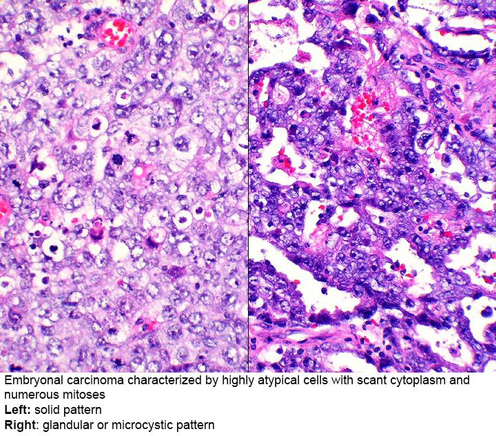 cancer pulmonar la batrani