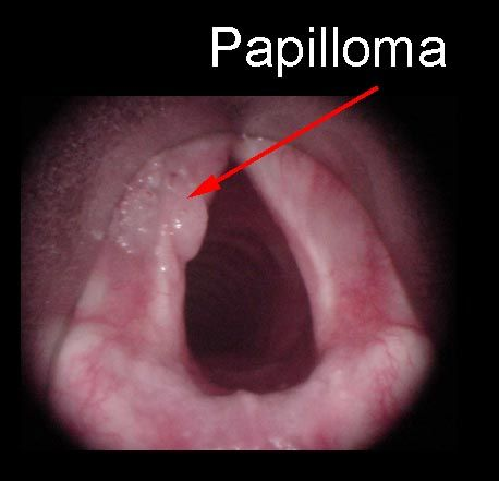 recurrent laryngeal papillomas ductal papilloma link to cancer