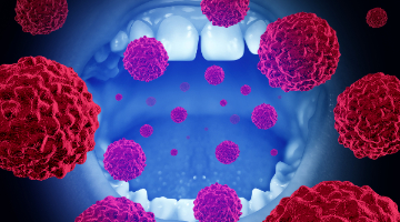 hpv related tongue cancer