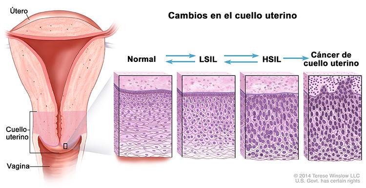 dysbiosis crohns disease