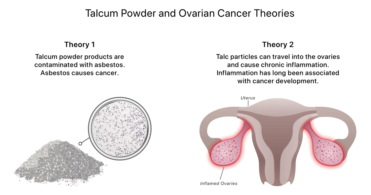 Talcum Powder: Does It Cause Cancer?