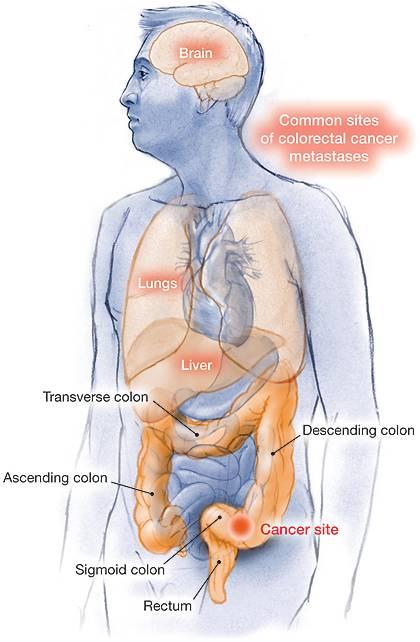 cancer colorectal metastatic - Traducere în engleză - exemple în română | Reverso Context