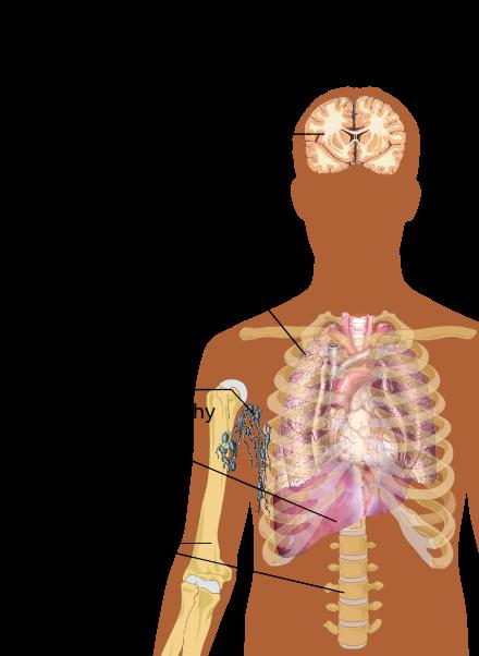 cancer in metastaza