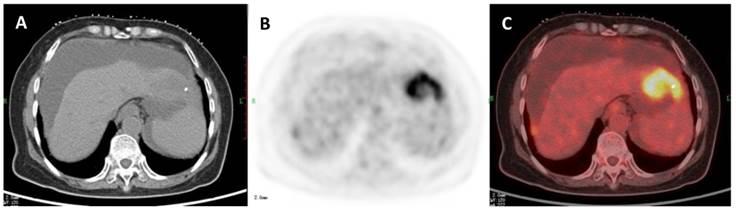 testicular cancer kinds can human papillomavirus kill u