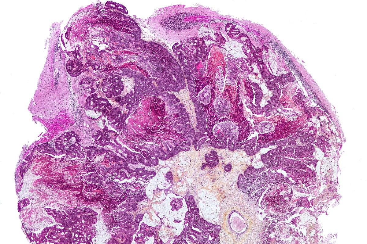 hpv treatment los angeles cancer de col uterin vaccin hpv