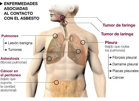 azbest - Traducere în spaniolă - exemple în română | Reverso Context