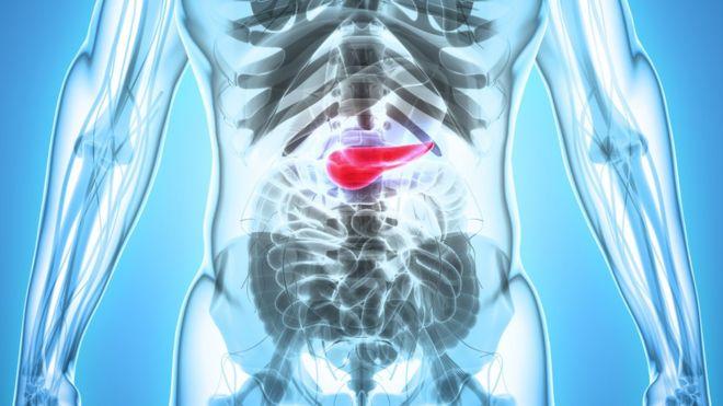 Conectarea pancreasului ?i a hipertensiunii