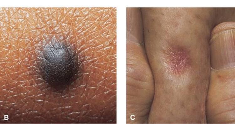 Ce este un nevus de piele: tipuri, tactici de tratament, prevenire