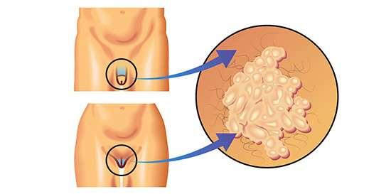 como detectar virus papiloma en hombres
