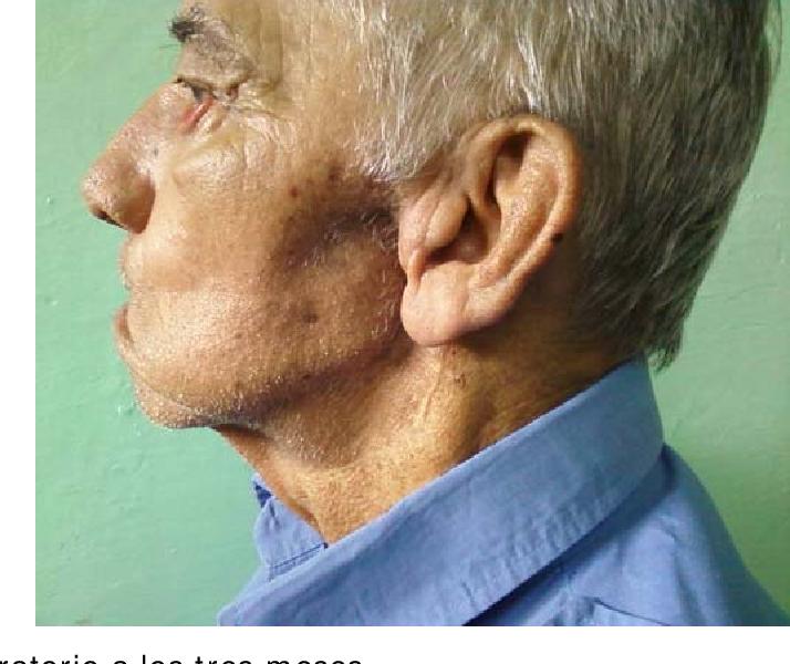 cancer malign la glanda parotida