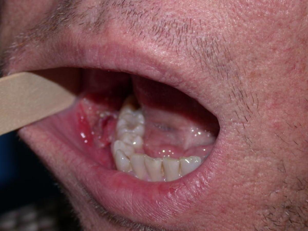 virusul hpv - Dr. Leahu Dental Clinics