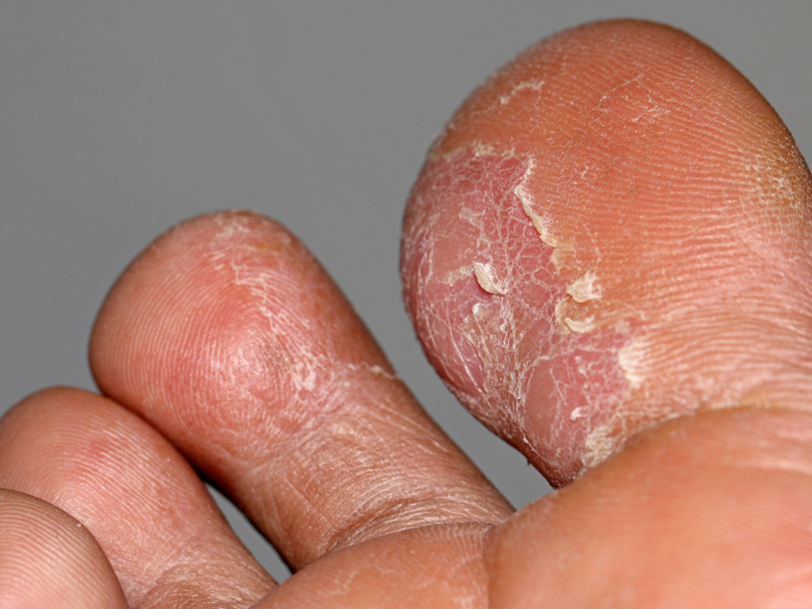 warts on hands from gym se vindeca cancerul de piele